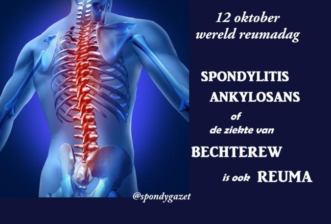 De ziekte van Bechterew is ook reuma